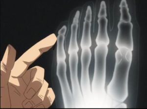 x-ray of izuku's foot